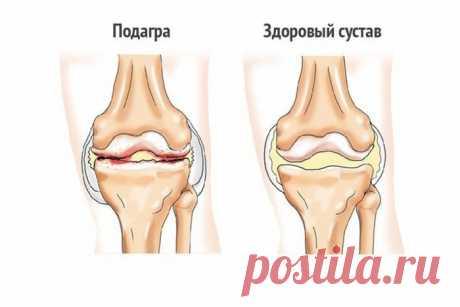 Подагра. Диета при подагре. Народные методы лечения подагры (Рецепты народной медицины)   Подагра – это хроническое заболевание, связанное с нарушением мочекислого обмена: повышенным содержанием мочекислых солей (уратов) в костях, суставах, сухожилиях, хрящах,…