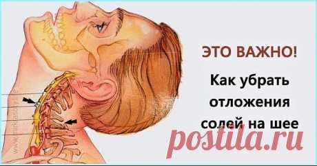 КАК УБРАТЬ ОТЛОЖЕНИЯ СОЛЕЙ НА ШЕЕ  Отложение солей на шее называют остеохондрозом шейного отдела позвоночника. Вследствие того, что шейный отдел позвоночника является весьма важной частью организма, нарушения в этой области приводят к серьезным нарушениям всего организма.  Область шеи является местом сосредоточения сосудов и нервов, питающих ткани шеи, лица, черепа. Кроме того, вследствие защемления нервных окончаний начинаются головные боли, онемение конечностей, слабость...