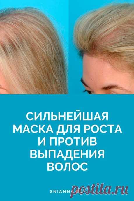 Сильнейшая маска для роста и против выпадения волос  Это очень простая и эффективная маска, готовить ее элементарно. Ингредиенты: