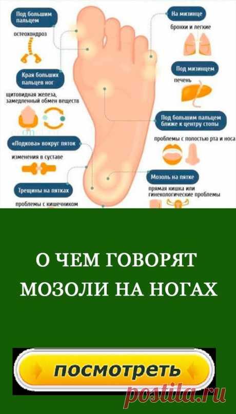О чем говорят мозоли на ногях