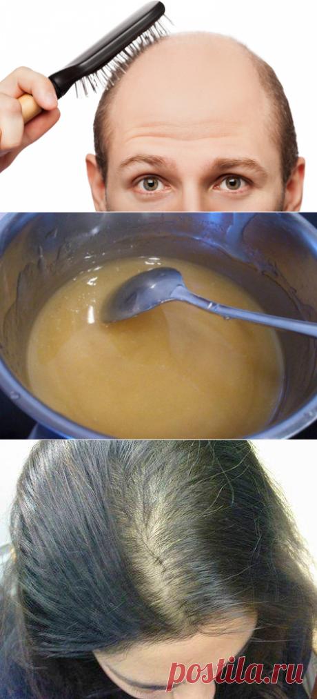 Как отрастить выпавшие волосы дома натуральным средством