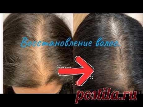 Восстановление волос за 50 руб! В аптеке ЭТО стоит копейки, а косметика с этим стоит в разы дороже!