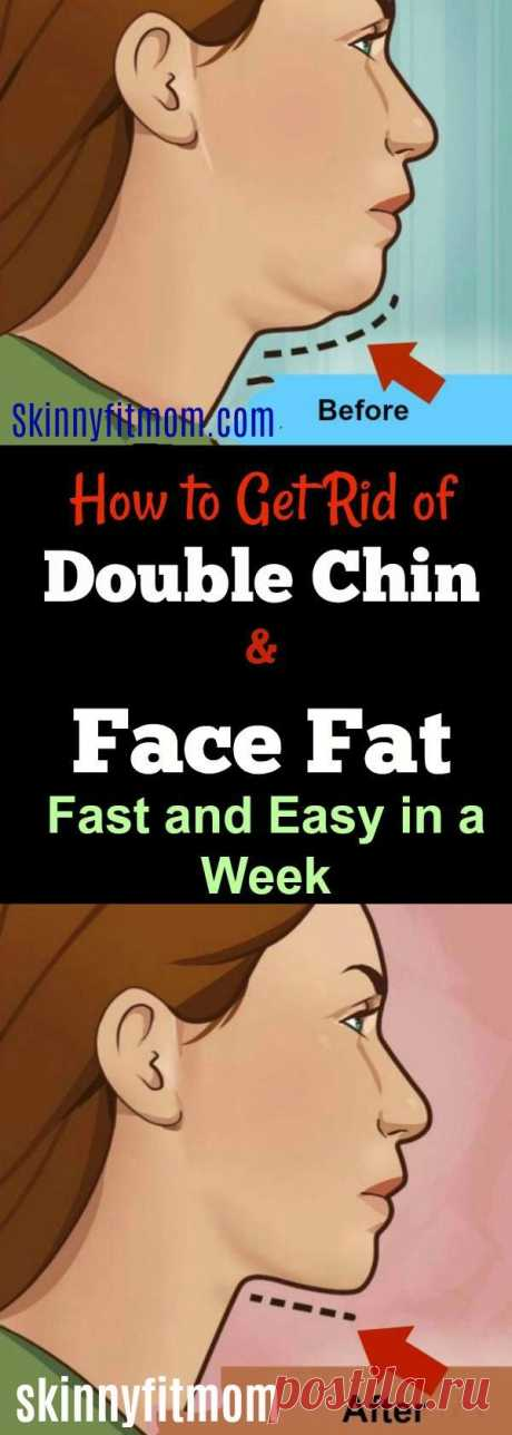 8 Exercises And Tips To Get Rid Of Neck Fat And Double Chin Fast