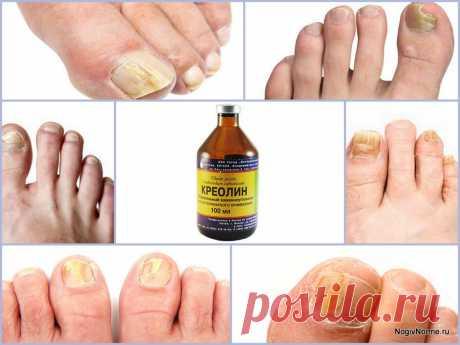 Грибок ногтей гомеопатическое лечение - О грибке...  Грибок ногтей гомеопатическое лечение. Пенсионеры! Не стригите грибковые ногти! ... Гомеопатическое лечение предполагает прием пациентом веществ, которые у людей вызывают симптомы болезни, но в очень ограниченных дозах. Об эффективности такой терапии ведется много дискуссий.