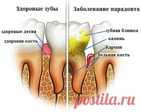 REMOVE THE DENTAL PLAQUE BY MEANS OF THESE 4 NATURAL INGREDIENTS!