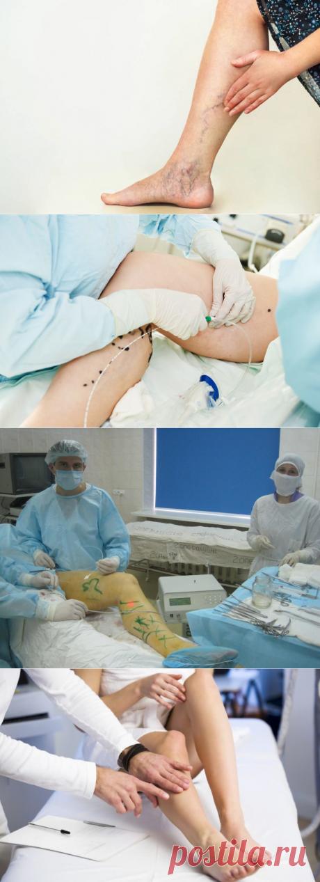 Рекомендации после флебэктомии [#восстановление] Профилактика осложнений