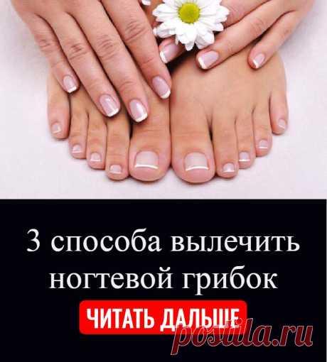 3 способа вылечить ногтевой грибок