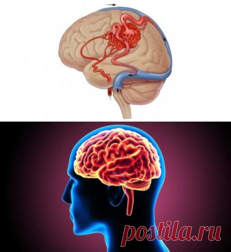 5 проверенных советов для тех, кто хочет улучшить кровообращение головного мозга - be1issimo.ru