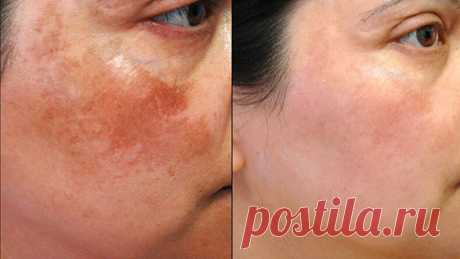 Американский доктор рекомендует: простой трюк быстро устранит пигментные пятна на коже! Всего 2 ингредиента