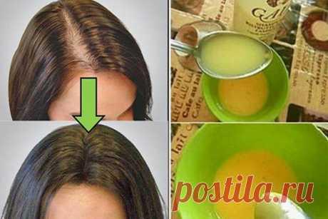 Это средство вводит врачей в шок: Волосы растут как сумасшедшие! Мечтаете иметь густую шевелюру?! Это средство поможет вам в этом!