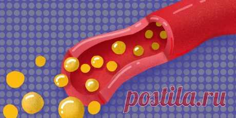 21 ответ на наивные, но важные вопросы о холестерине - Лайфхакер
