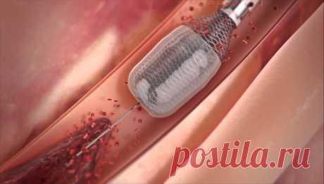 XXI век: безоперационная чистка кровеносных сосудов Ждем в ближайшей поликлинике!