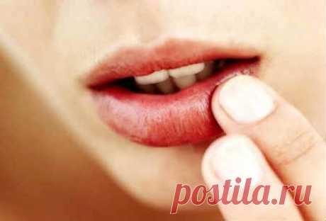 Заеды на губах - причины, как лечить. Чем лечить заеды в уголках губ