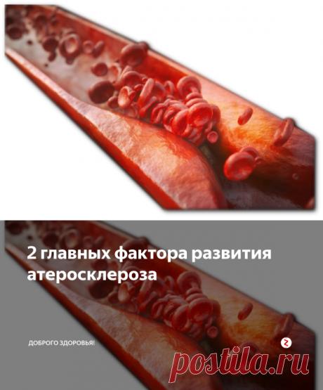 2 главных фактора развития атеросклероза | Доброго здоровья! | Яндекс Дзен
