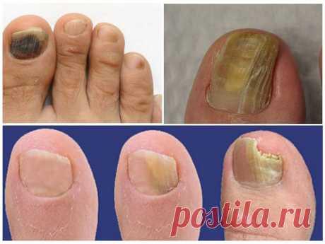 Грибок Ногтей Гомеопатическое Лечение | O`RLY OWLZ...  Гомеопатическое лечение грибковых заболеваний кожи . Ногти сильно ороговевшие и утолщённые, деформированные ... Чем лечат в германии грибок ногтя ? . Нет ни чего лучшего как гомеопатическое лечение . Лечение грибка кожи и ногтей гомеопатическими препаратами