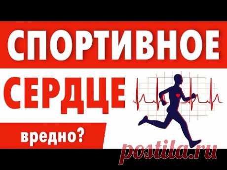 Тренировка сердца. Кардио нагрузки нужны или нет