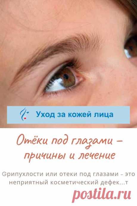 Отеки зоны под глазами – распространенная проблема, доставляющая немало неудобств. Подкожная ткань в этих местах имеет очень рыхлую структуру и почти не содержит коллагеновых волокон. Кроме того, кожа под глазами постоянно подвергается сжатию и растяжению – когда человек зажмуривается, моргает и т.д. Все это создает предпосылки для возникновения так называемых мешков, придающих лицу усталый и болезненный вид и визуально добавляющих возраст.