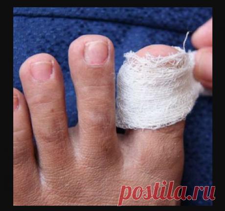 Никогда не стригите грибковые ногти! Грибок ног боится этого простого средства…  | обустройство дачи