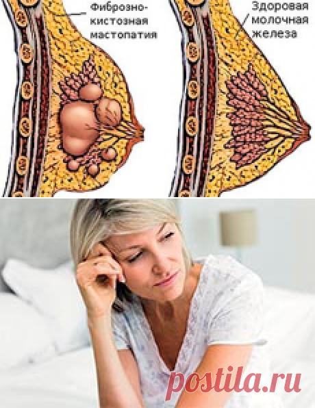 Фиброкистозная мастопатия: причины появления, методы лечения