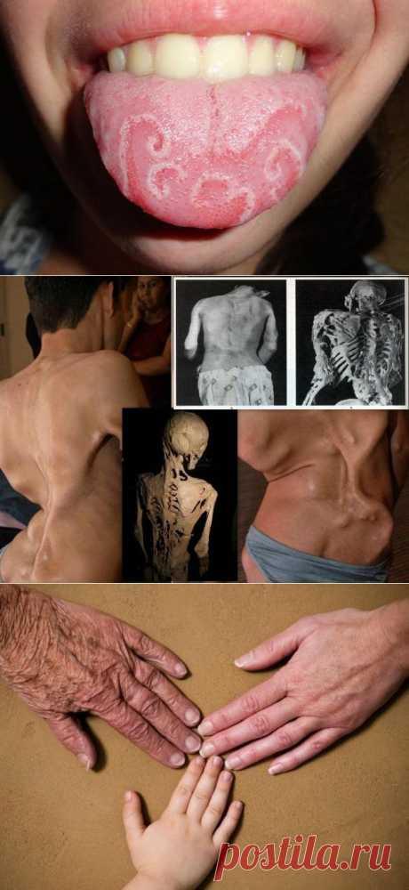 » 10 наиболее необычных медицинских диагнозов Это интересно!