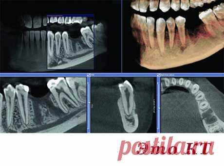 """Зачем """"злые стоматологи"""" посылают пациентов делать КТ? - Интернет ежедневник - медиаплатформа МирТесен"""
