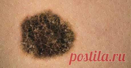 Если у вас есть эти две родинки, вы должны знать, что одна из них - потенциальный рак кожи! - Советы на каждый день