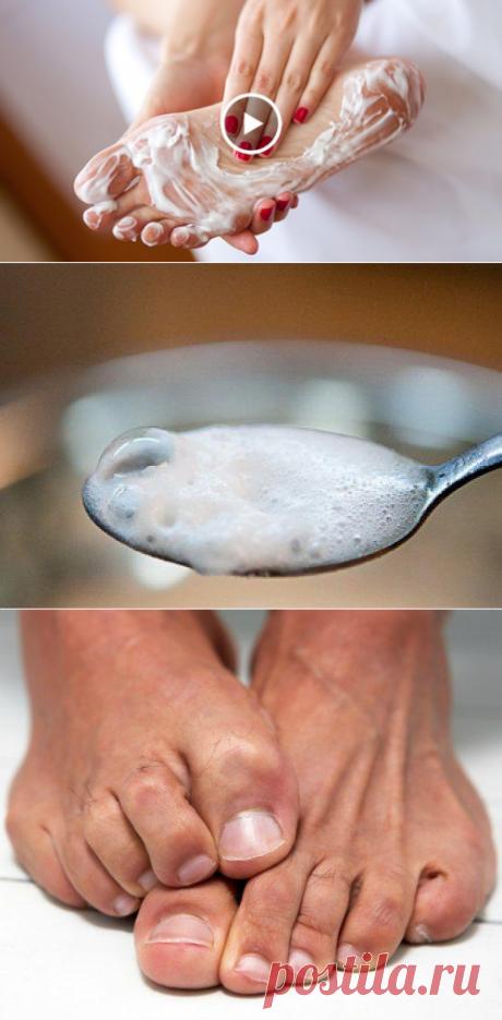 Избавляемся от грибка ногтей и стоп с помощью смеси из 2 ингредиентов