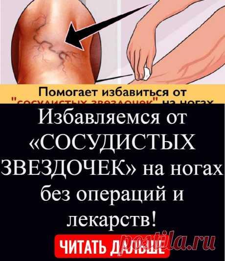 Избавляемся от «СОСУДИСТЫХ ЗВЕЗДОЧЕК» на ногах без операций и лекарств!