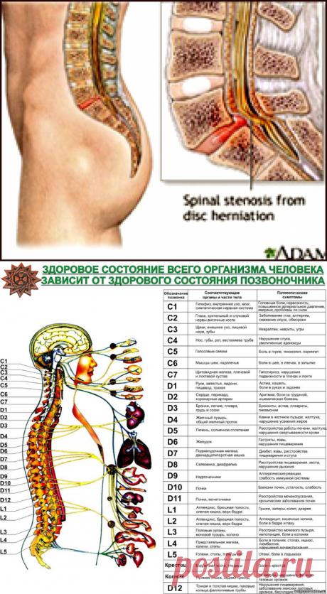 g>Синдром болей в позвоночнике
