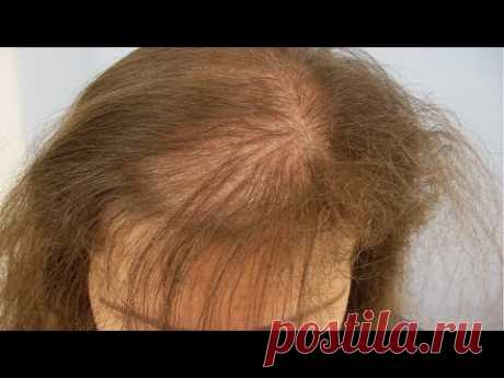 Супер маска от выпадения волос