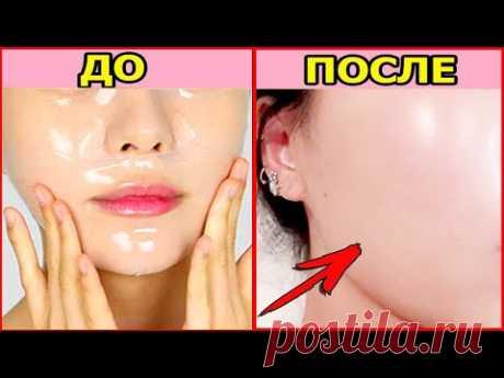 Кожа чистая как стёклышко! Корейский уход за кожей лица. Как очистить и вылечить проблемную кожу.