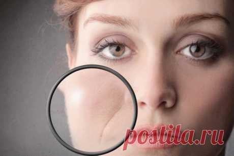 Круговая мышца рта: Избавляемся от складок и обвислости - Женский Журнал