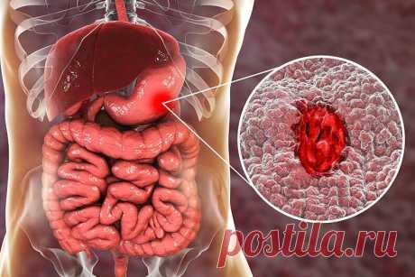 Что делать при язве желудка Лечение язвы, так же как лечение любой болезни, — это лечение всего организма. Это означает, что в первую очередь больной должен избавиться от излишней кислотности тканей и очистить бронхи от гноя.