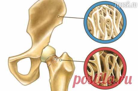 Чем грозит остеопороз и как вернуть костям прочность
