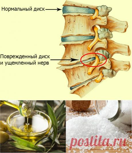 Простое домашнее средство от остеохондроза позволит забыть о боли лет на 5
