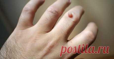 Как избавиться от бородавок народными средствами Бородавки являются одной из наиболее распространенных проблем кожи, которые могут появиться в любом месте на теле, но они чаще всего встречаются на руках и ногах. Они могут расти гроздьями или поодино...