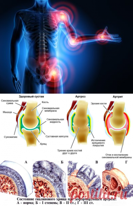 Arthritis arthrosis - how to treat without operation and drugs?!