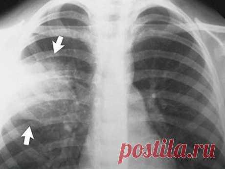 Пневмония на рентгеновских снимках: признаки и виды воспаления