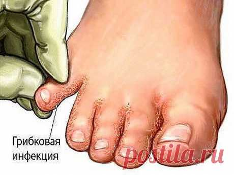 """Many do not know that means from a fungus of """"под носом&quot at them;"""