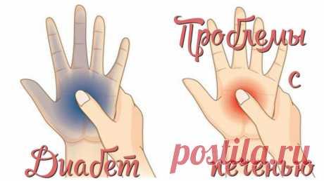 О проблемах с щитовидкой и многих других заболеваниях расскажут наши руки