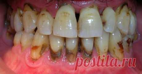 Когда вы увидите этот метод, вы будете сердиться на своего стоматолога за то, что он скрыл это. Вы удалите зубной камень за 2 дня    Вы будете удивлены результатом!           Вы будете рады узнать этот метод, чтобы устранить зубной камень. Как мы уже говорили, зубной камень — желтоватое вещество, которое накапливается вокруг зу…
