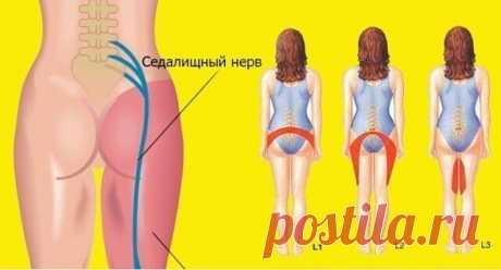 2 простых упражнения для разблокировки седалищного нерва. — Zdorovo-Tut