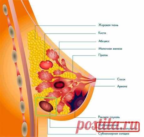 Фиброма молочной железы: симптомы, эффективное лечение