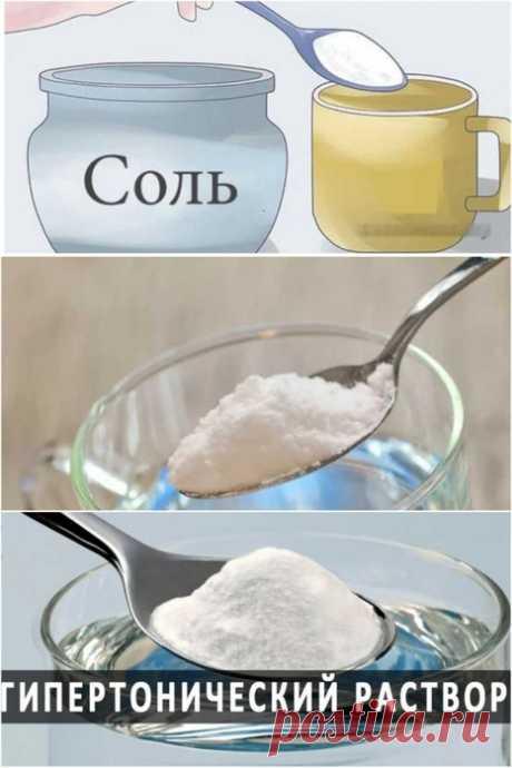 Солевой 8-10 процентный раствор для лечения гипертонии