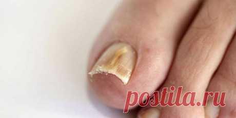 Отечественные препараты от грибка ногтей - О грибке ногтей  Средство от грибка ногтей на ногах. Врач может назначить специальную схему ... Грибок на ногтях – это инфекционное заболевание, которое имеет название онихомикоз.