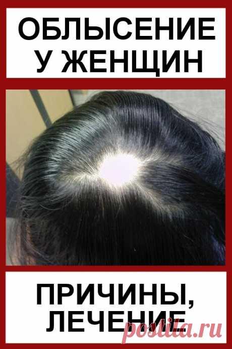 Облысение у женщин: причины, лечение. Средства от облысения для женщин. Сегодня можно часто встретить женщин, которые страдают от выпадения волос. Причем у них появляются настоящие лысины. Естественно, они не очень приятны для дам, так как портят внешний вид прически и говорят о каких-либо проблемах со здоровьем. Если диагностируется облысение у женщин, причины (лечение часто зависит от них) определяют схему борьбы с заболеванием.