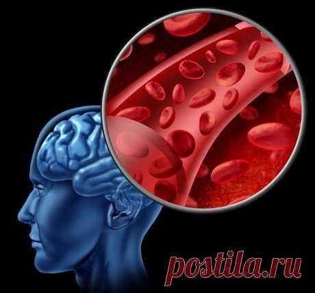Как улучшить кровообращение головного мозга: эффективные методы