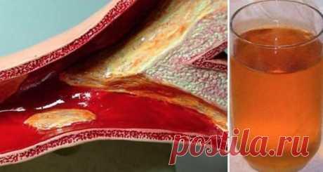 рецепт, который поможет вам очистить ваши закупоренные артерии очень быстро. Это древнее средство предлагает удивительные результаты. Это средство очищает наши артерии, укрепляет наш иммунитет, регулирует уровень липидов и борется с инфекциями. Более того, он также укрепляет нашу иммунную систему и очищает нашу печень!