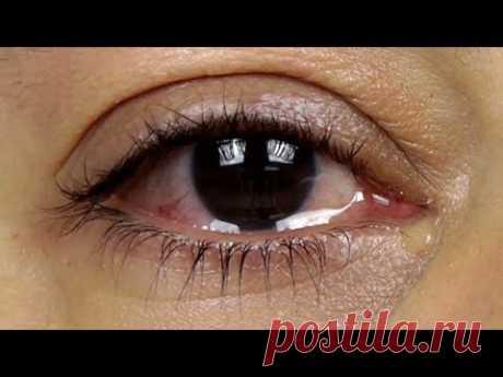 Домашние средства от глазных инфекций и слезотечения: 4 мощных средства! (видео) - Страница 2 из 2