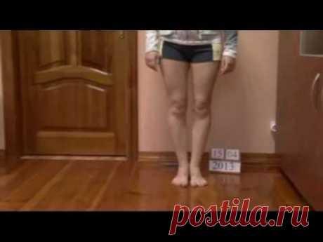 Исправление и выпрямление кривых ног О-образной формы в Украине - Опыт пациента из России